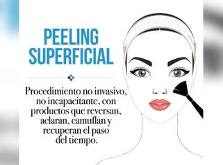 Peeling superficial