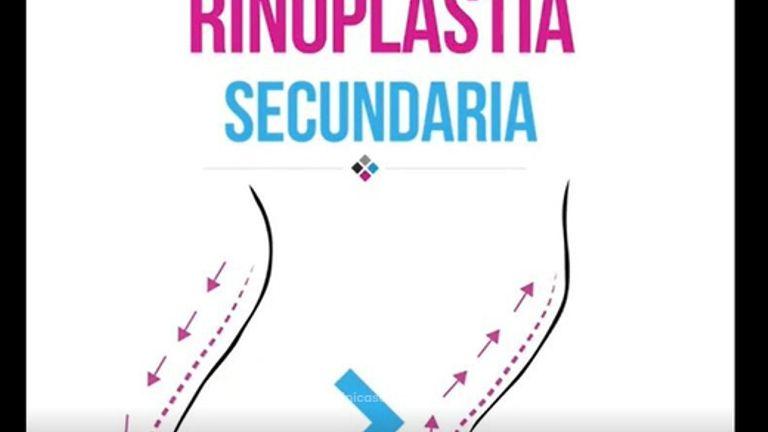 Rinoplastia Secundaria