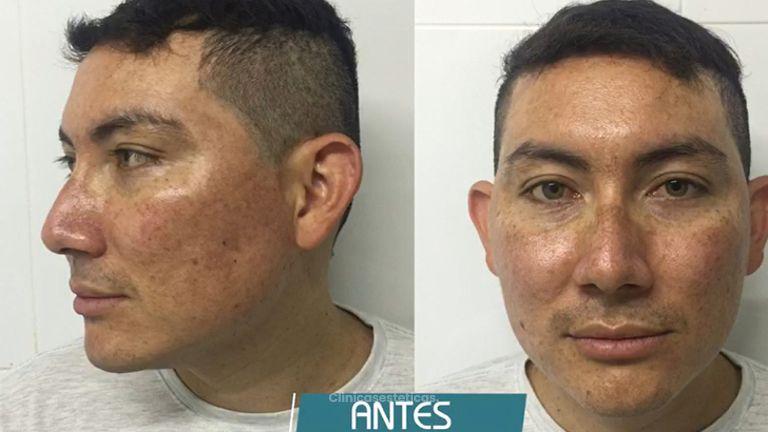 Corrección de Manchas en el Rostro  - Dr. Fernando Pinedo Bischoff