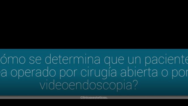 ¿Cirugía abierta o videoendoscopia?