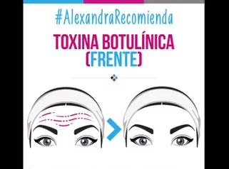 Toxina Botulinica (frente)