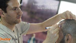 Como se realiza un trasplante capilar