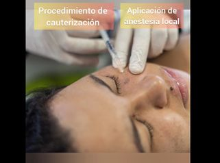 Proceso de Cauterización - Kairos Salud Integral
