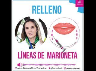 Relleno líneas de marioneta - Doctora Alexandra Mora