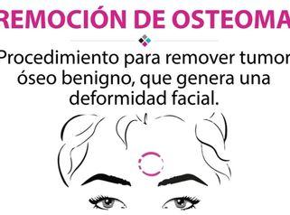 Remoción de osteoma