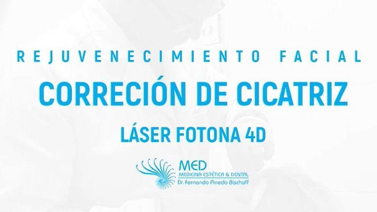 Corrección de cicatrices con láser FOTONA 4D