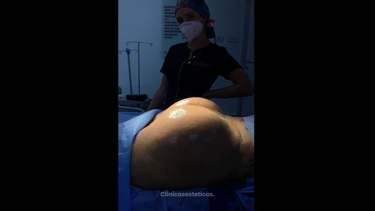 Gluteoplastia - Dr. Luis Fernando Reyes y Dra. Nicole Echeverry