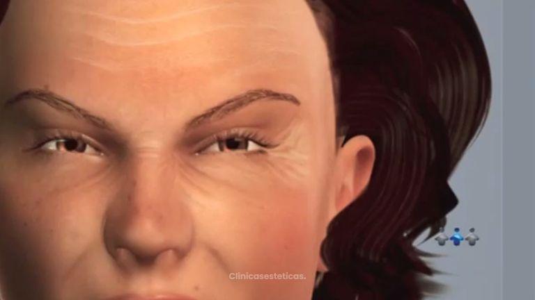 Acaba con las arrugas de tu cara