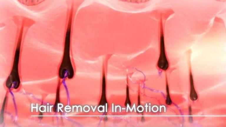 Depilación láser sin dolor