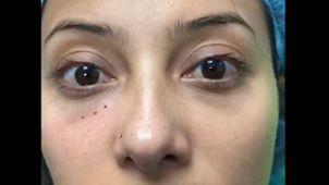 tratamientos para eliminar las ojeras