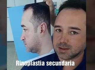 Experiencia Rinoplastia
