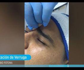 Caporización de Verruga con Láser Erbio FOTONA