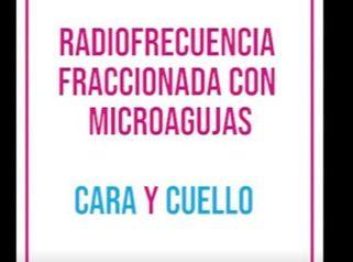 Radiofrecuencia Fraccionada con Microagujas