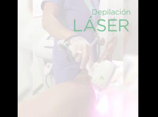 Depilación láser - Massai Clínica
