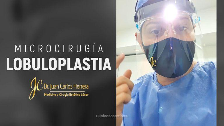 Lobuloplastia - Dr. Juan Carlos Herrera P.