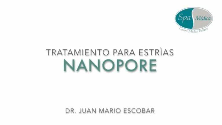 Tratamiento para estrías con NANOPORE en Spa Médica