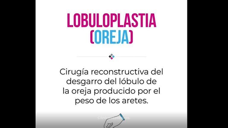 Lobuloplastia