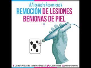 Remoción lesiones benignas de la piel