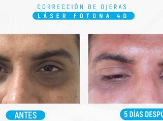 Corrección de Ojeras con Láser Fotona 4D