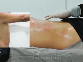Lipoescultura - Dr. Juan Carlos Herrera P.