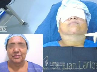 Cirugía de papada - Dr. Juan Carlos Herrera P.