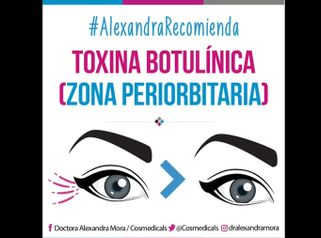 Toxina botulínica (zona periorbitaria)