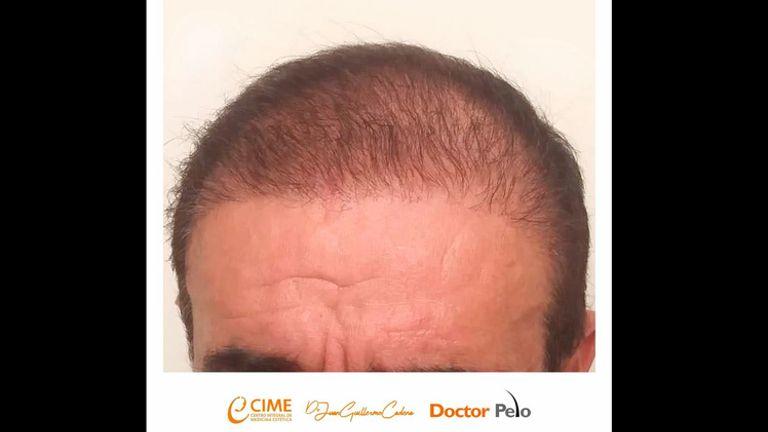 Evolución Alopecia