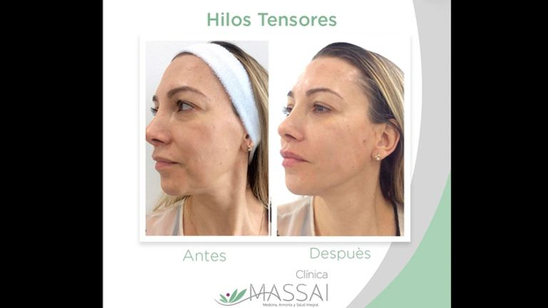 Hilos tensores faciales - Massai Clínica