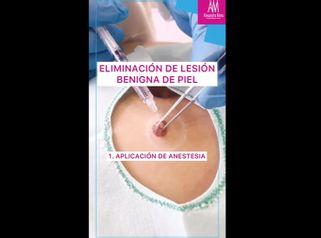 Eliminación de lesión benigna de piel - Doctora Alexandra Mora