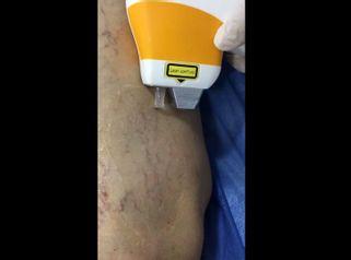 Remoción de venas en piernas.
