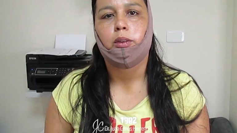 Testimonio lipomoldeamiento láser de papada + bichectomía
