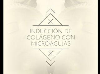 Inducción de colágeno con microagujas