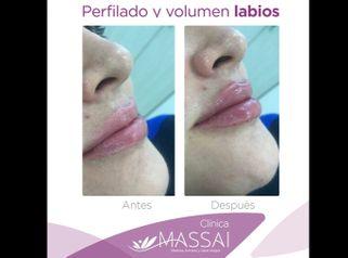 Aumento de labios - Massai Clínica
