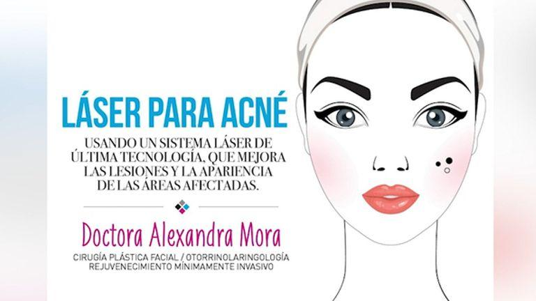 Láser para acné