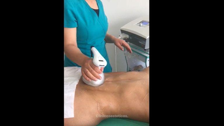 Tratamiento con Velox - Novastética