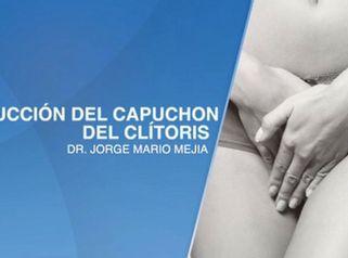 Reducción del capuchon del clítoris