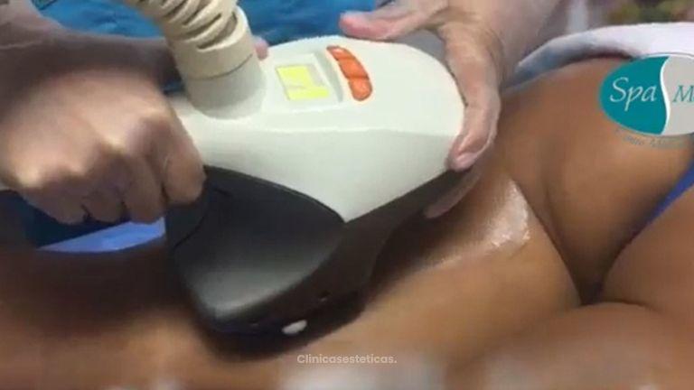 Tratamiento para celulitis.