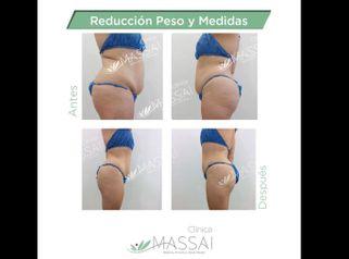 Liposucción - Massai Clínica