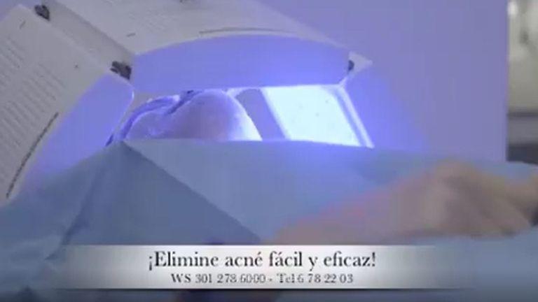 Elimina el acné y estimula la producción de colágeno