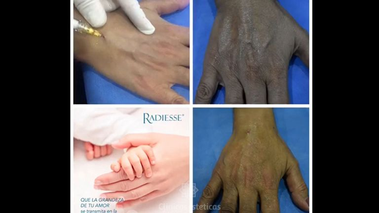 Rejuvenecimiento de manos con Radiesse - Innova Laser Center