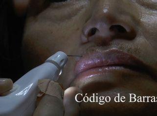 Cirugías Estéticas Preauriculares y Periorales