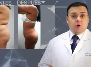 Lipoabdominoplastía 2