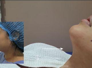 Liposucción de papada + Bichectomia - Dr. Juan Carlos Herrera P.