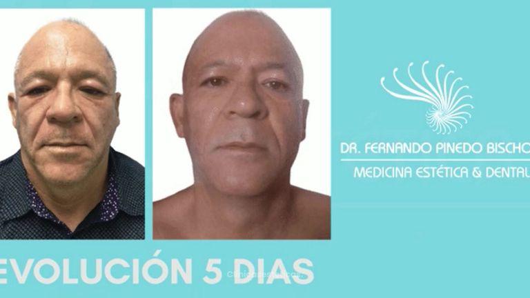 Blefaroplastia - Dr. Fernando Pinedo Bischoff