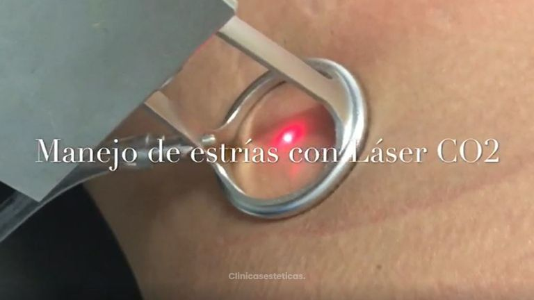 Manejo de estrias con laser CO2