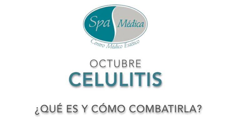 Celulitis, ¿Qué es y cómo combatirla?