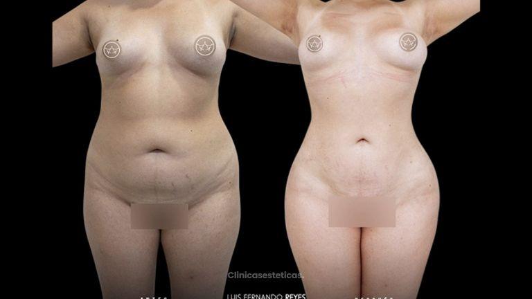 Liposucción - Dr. Luis Fernando Reyes