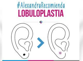 Lobuloplastía