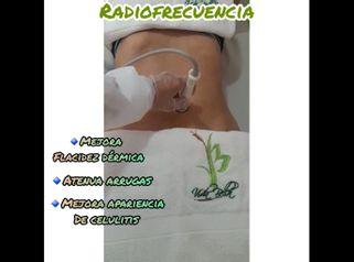 Radiofrecuencia - Vida Bella