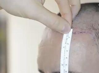 Implante capilar - Dr. Juan Guillermo Cadena